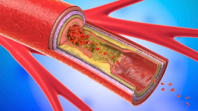 Artery with accumulation of fat and cholesterol inside