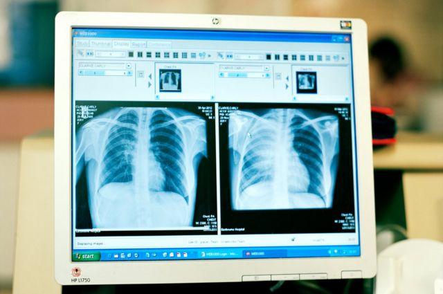 Tomografia de Carly Clarke revela tumor, como mostra o computador do médico