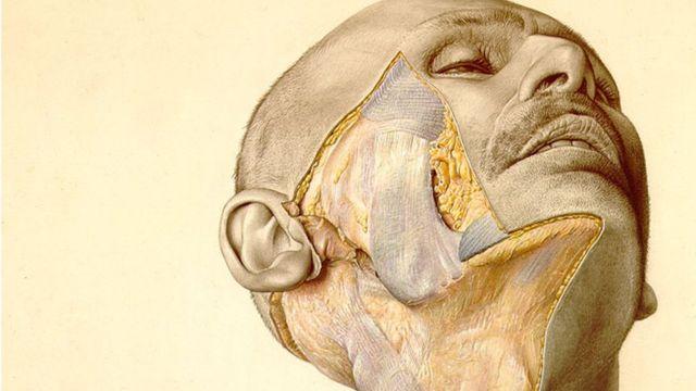 Una ilustración del atlas muestra la mejilla parcialmente disecada de un hombre.