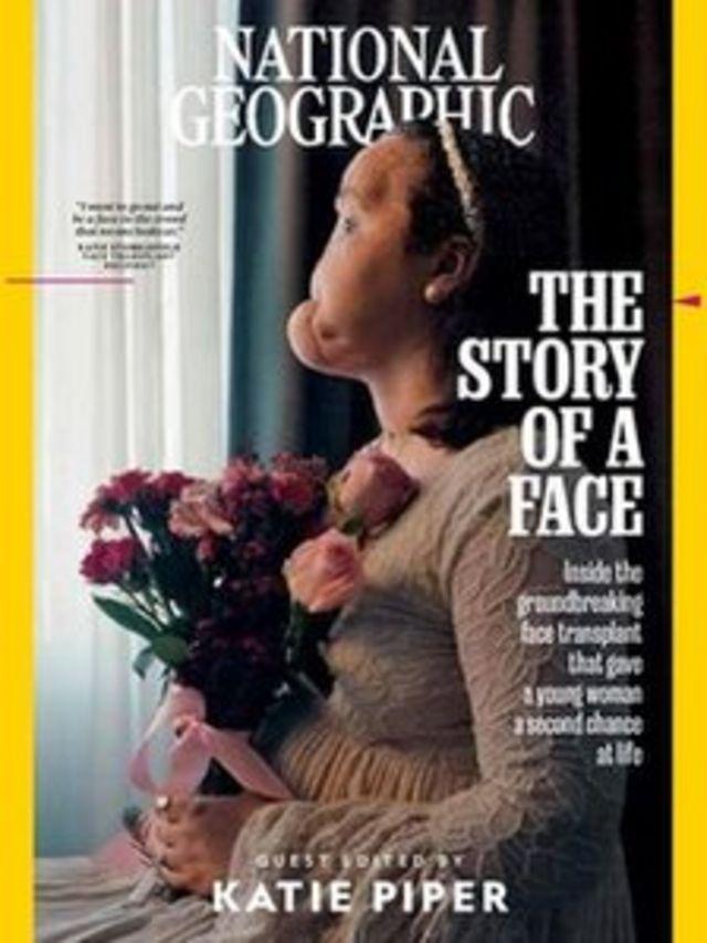 Imagem mostra capa da edição de setembro da revista National Geographic, mostrando foto de Katie Stubblefield. Ela é a mais jovem americana a passar por um transplante facial. Foi submetida à cirurgia após uma tentativa de suicídio que a fez perder grande parte do rosto.