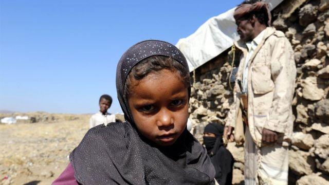 طفلة يمنية نازحة بسبب الحرب