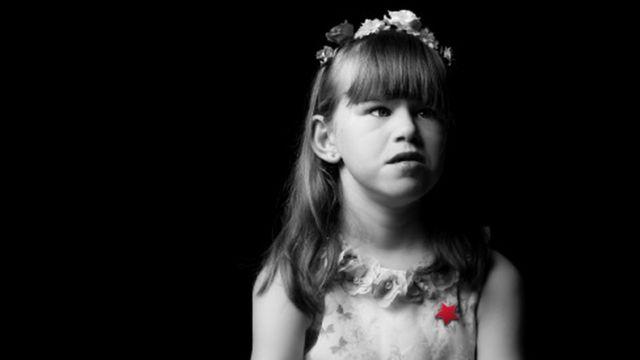 Skye, de 8 anos, tem dificuldade de aprendizagem, problemas cardíacos e renais