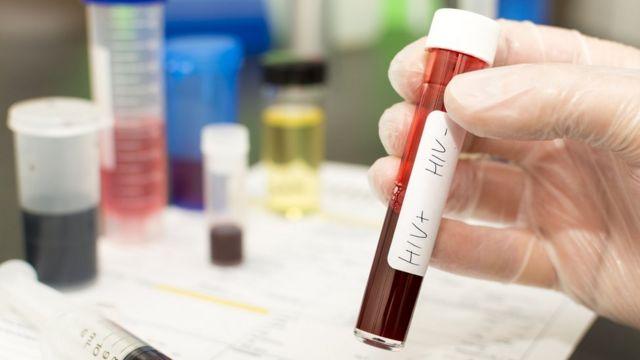 Exame de sangue vírus HIV