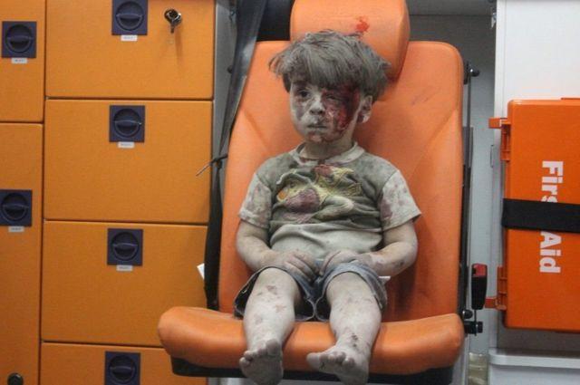 ओमरान दक़नीश, सीरियाई बच्चा