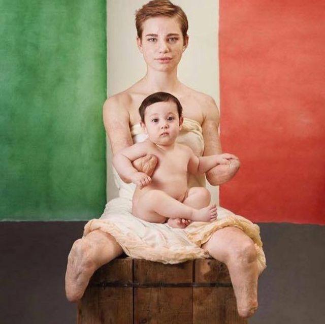 Beatrice sem as próteses, sentada com um bebê no colo