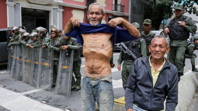 Venezolano mostrando su estado de desnutrición