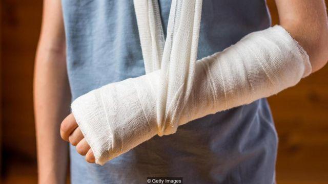 Rapaz com braço engessado