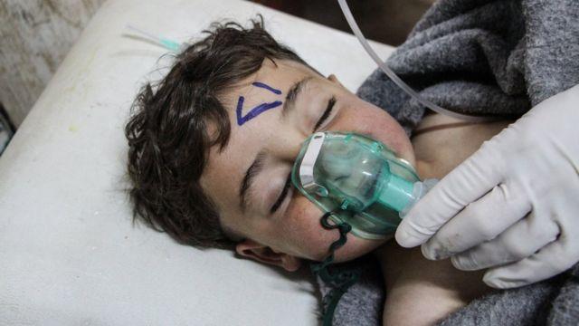 เด็กซีเรียคนหนึ่งกำลังได้รับการรักษา หลังจากเผชิญกับการโจมตีด้วยอาวุธเคมี ในเมืองข่าน เชคุน ปี 2017