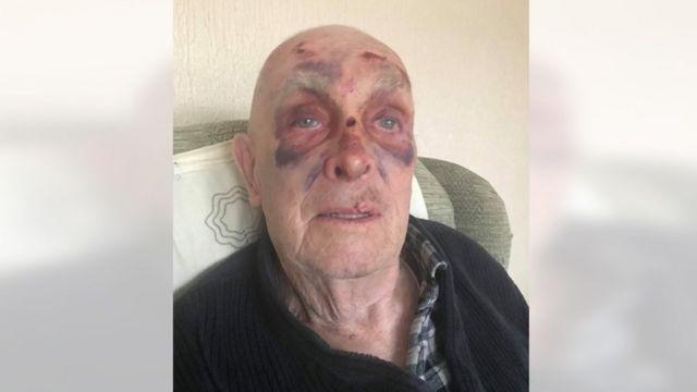 Off-road biker leaves Cardiff man, 84, injured in road