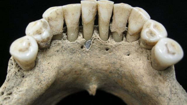 Blue tooth reveals unknown female artist from medieval times