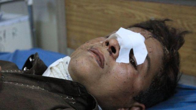 раненый в Афганистане