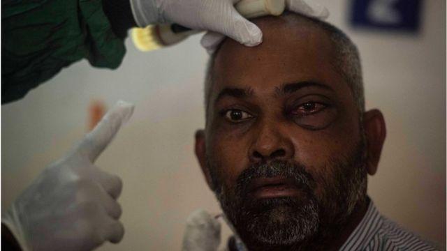 Hindistan'da bir hastanede mukormikoz hastası