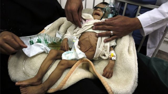 Полмиллиона детей в Йемене остро страдают от недоедания