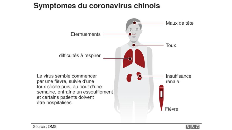 Voici les symptômes du coronavirus