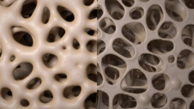 Differences in bone density - higher on the left, lower on the right