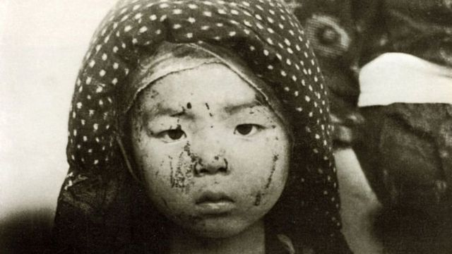 Seorang anak selamat dari pemboman