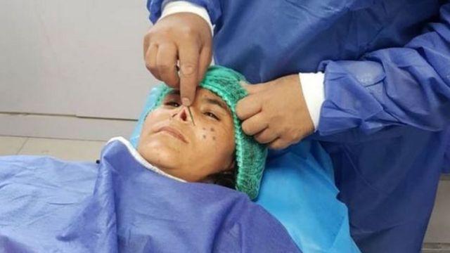 عمل جراحی زرقا با بیهوشی موضعی انجام شد