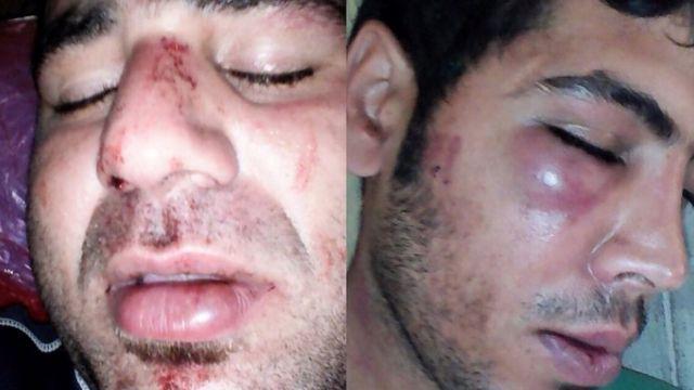 دو پناهجوی مجروح ایرانی