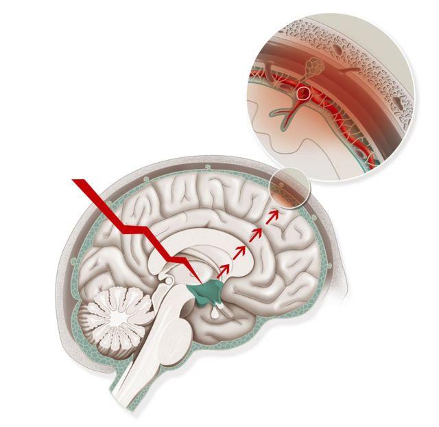 和正常的头痛不同,偏头痛严重得多,能引起视觉障碍和呕吐。