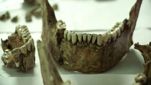 Jaw skull