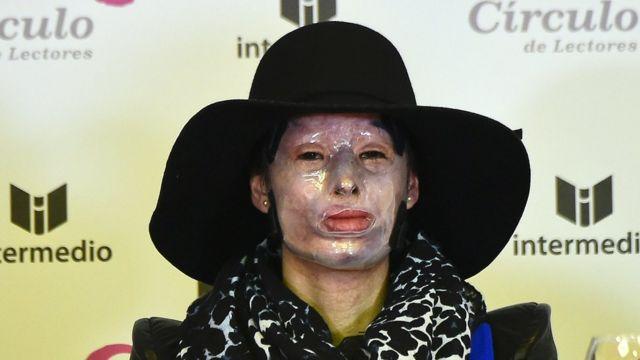 Natalia Ponce de León utilizó durante un tiempo una máscara para proteger su piel.