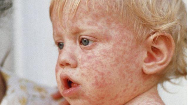 Kızamık hastası bir çocuk