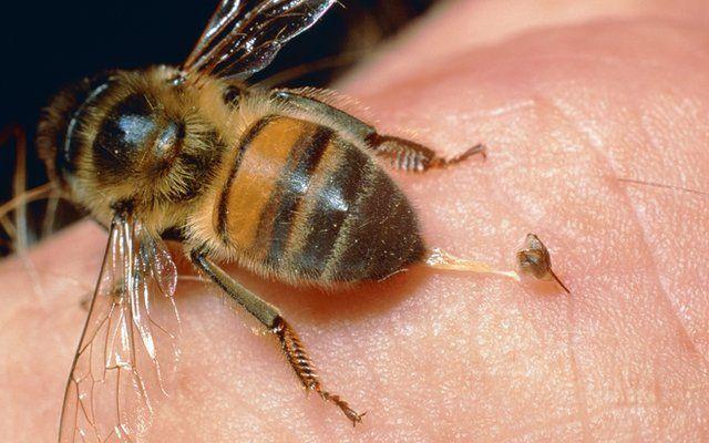 ミツバチに刺されて一番痛いのは体のどこ?