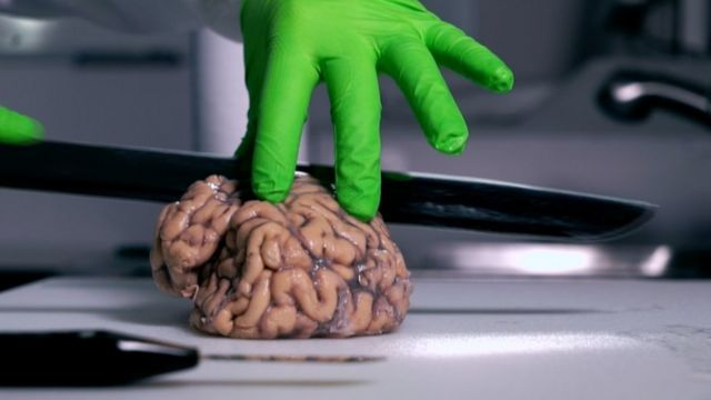 Cutting brain for research