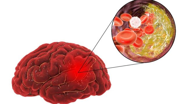 Illustration of a brain suffering from a vascular accident due to atherosclerosis