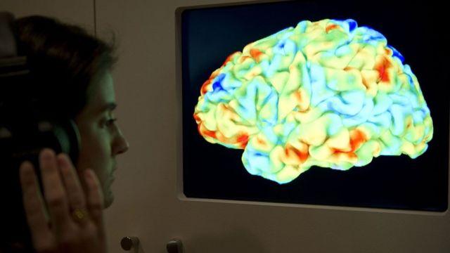 การตรวจสมองด้วยเครื่องสนามแม่เหล็กแรงสูง
