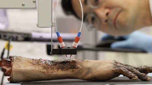 Тест нанесения кожи на обожженную рану