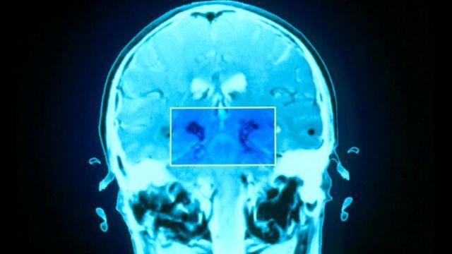 Усталость может возникать из-за повреждения базальных ядер. На фото изображен мозг пациента с болезнью Паркинсона