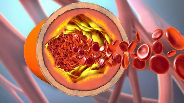 گرافیک از داخل رگ خونی