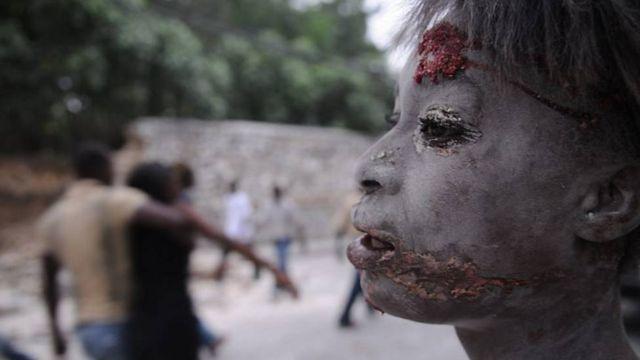 Víctima del terremoto en Hiaití de 2010.