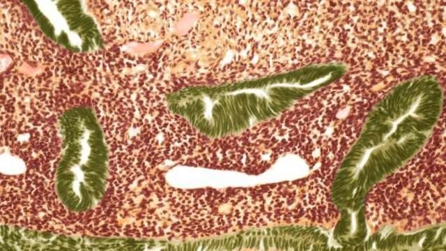 子宮がん細胞の画像
