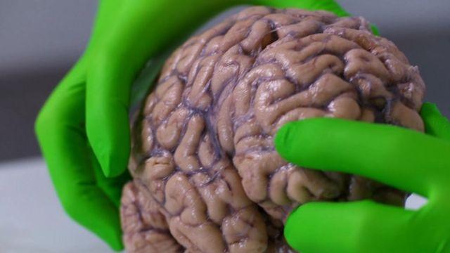 BBC's Fergus Walsh looks at a brain