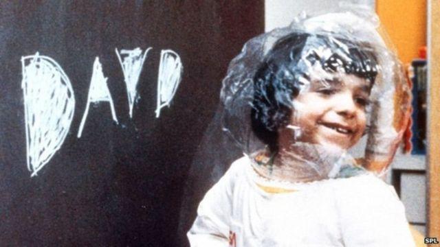 """ديفيد فيتر الذي عرف في حقبة السبعينيات باسم """"طفل الفقاعة"""""""