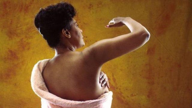 इंगलैंड में स्तन कैंसर की काली महिला मरीज