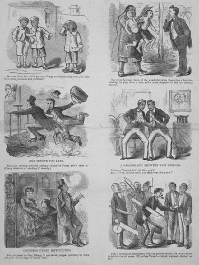 Viñetas con la historia de los hermanos siameses