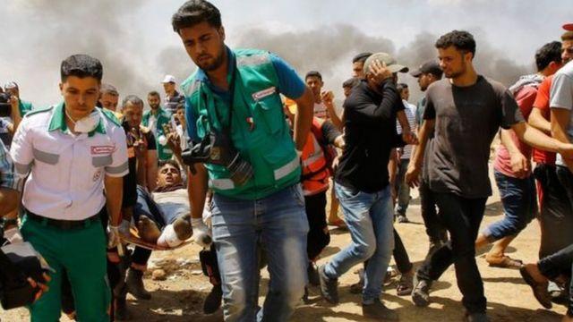 Ndị merụrụ ahụ na Gaza