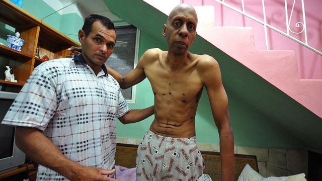 Fariñas ya hizo una huelga de hambre en 2010.
