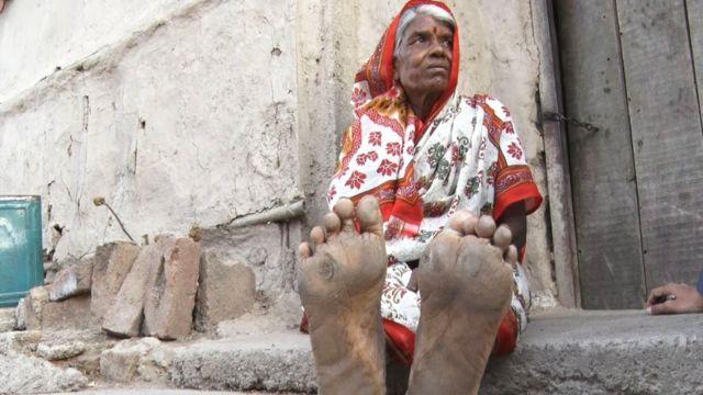 पायाला असे घट्टे पडले आहेत