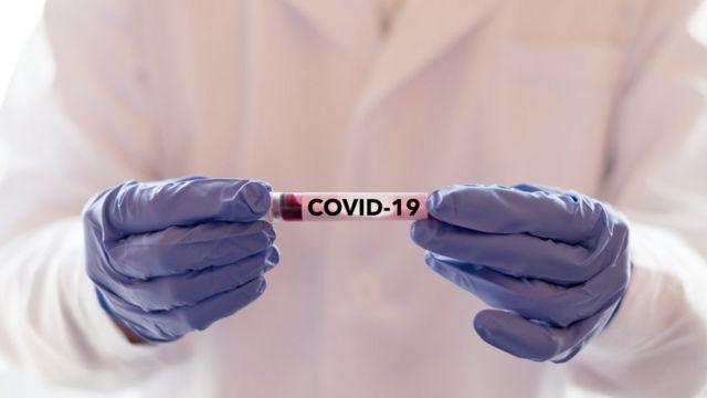 Teste covid-19