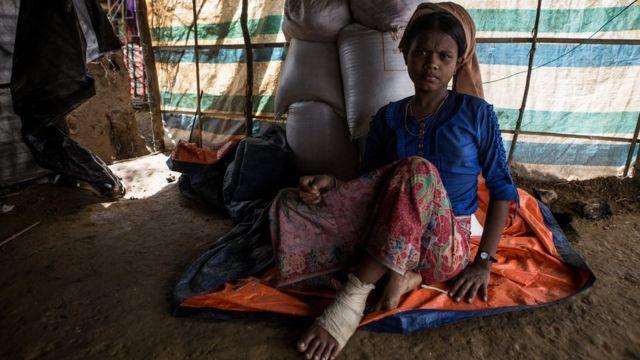 কুতুপালং ক্যাম্পের হাসিনা, ১৬, বলছেন তার পায়ে গুলি লেগেছে।