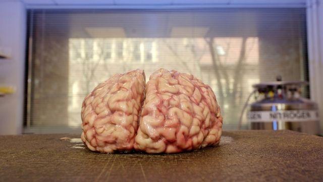 Cerebro humano donado al centro de investigación de cerebro y tejidos de Harvard.