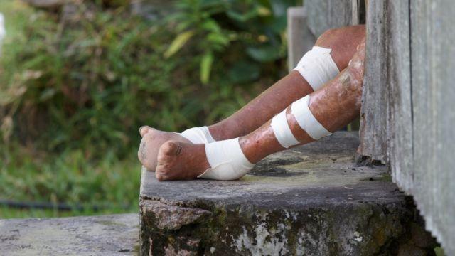 Piel de una persona con lepra.