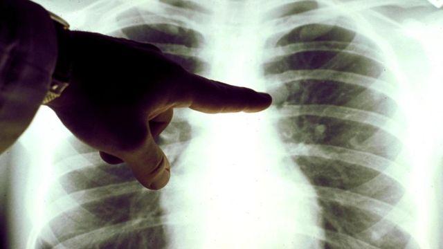 Настанет ли день, когда просветить предмет насквозь сможет любой желающий, а не только врач-рентгенолог?