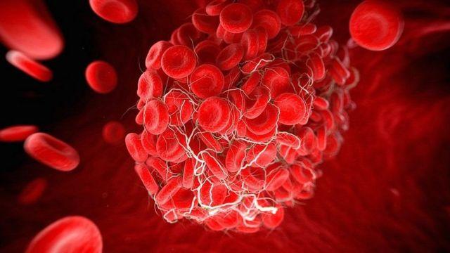 副作用:罕见血栓和阿斯利康、强生疫苗有什么关系(photo:BBC)