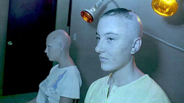 Dos adolescentes víctimas de la radiación recibiendo tratamiento en Cuba.