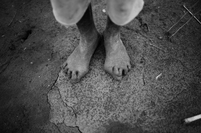 An elderly man's feet on the hard earth
